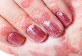 nail psoriasis treatment home remes