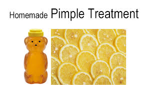 homemade pimple treatment family