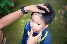 head lice symptoms 7 things to look