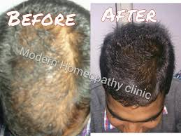 hair loss solutions for thinning hair