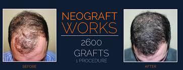 neograft hair transplant allen hair