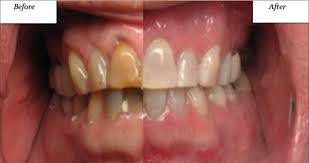 zoom whitening westerville oh