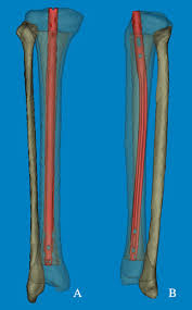 tibia for intramedullary nail fixation