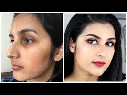 foundation and concealer cover acne