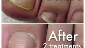 fungal nail infection removal rachels