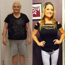 gastric sleeve success stories