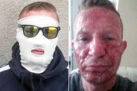 Image result for boils on face