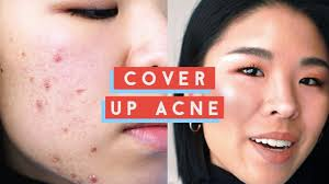 how to cover up acne my secret to
