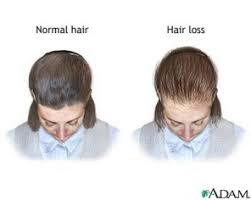 birth control pills can cause hair loss
