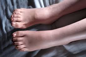 swollen ankles feet and legs oedema