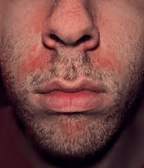 dry skin is seborrheic dermais