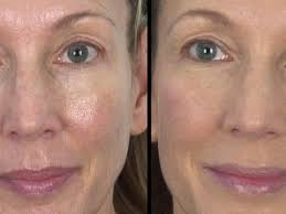 large pores wrinkles smooth skin