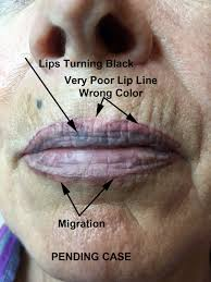 permanent makeup lips gone wrong