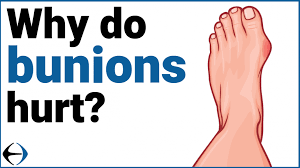 why do bunions hurt evercore move