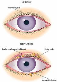 itchy eyelids blepharitis treatment