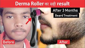 derma roller beard treatment