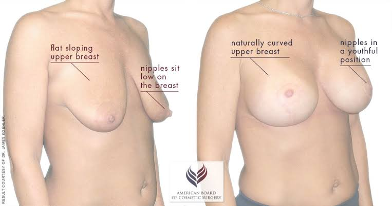 saggy breast before and after