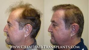 hair transplant cost: Maxine, West Virginia(WV) in Boone county - Dr. Brett  Bolton