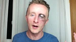 swollen black eye with makeup