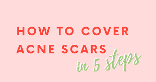 how to cover acne scars in 5 steps
