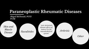 Paraneoplastic Rheumatic Disorders by Abigail McDonald