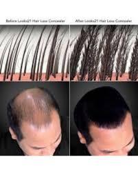 caboki hair loss concealer fiber