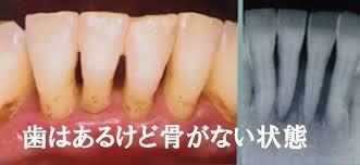 2020年2月 香川県高松市吉本歯科医院