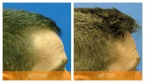 hair transplant in franklin hair