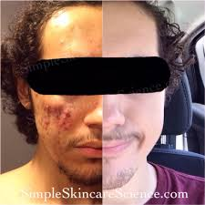 acne org regimen review thoughts after