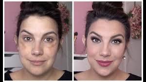 full coverage makeup for melasma