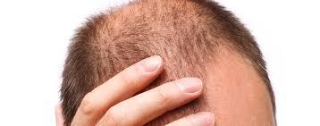 ニューモって育毛剤の口コミ・評判を聞いてみた!【育毛効果はあるの?副作用は?ファーマフーズってどんな会社?】