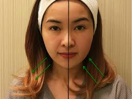 say goodbye to chubby cheeks without