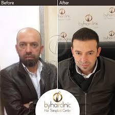 hair transplantation in istanbul turkey