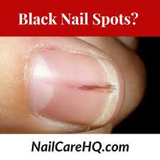 ask ana black spots in nails nail