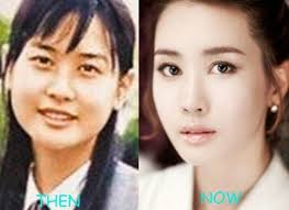 korean actors actresses before and