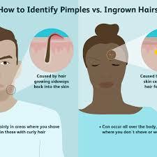 a pimple and an ingrown hair