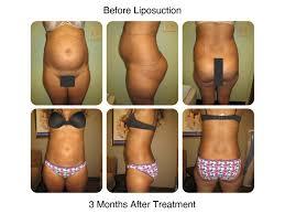 smart liposuction new radiance