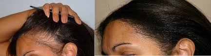 tight braids and hair loss traction