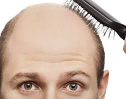 testosterone and male baldness