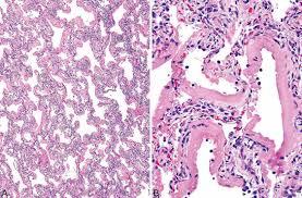 Diffuse Alveolar Damage, Acute Interstitial Pneumonia | Thoracic Key