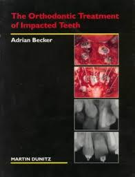 The Orthodontic Treatment of Impacted Teeth: Amazon.co.uk: Becker, Adrian:  Books