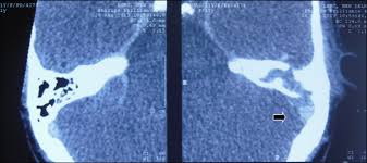Septic Lateral Sinus Thrombosis Sinus Exploration Is Unnecessary