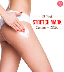 stretch mark creams for pregnancy