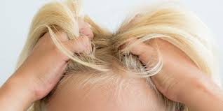 natural remes for lice how to get