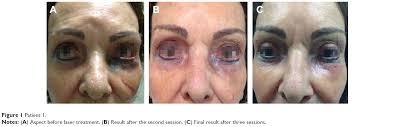 after permanent eye makeup