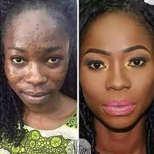 wonder photo of lady with severe acne