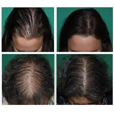 hair loss causes and treatment options
