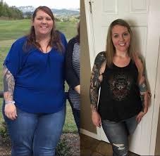 success stories georgetown bariatrics