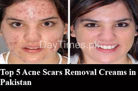 acne scar removal creams in stan
