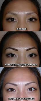 permanent makeup eyebrows before after